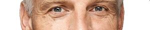 Bolsas de ojos